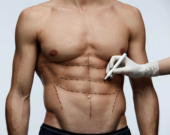 Cosmetic Surgery can help you get 10-pack of abs
