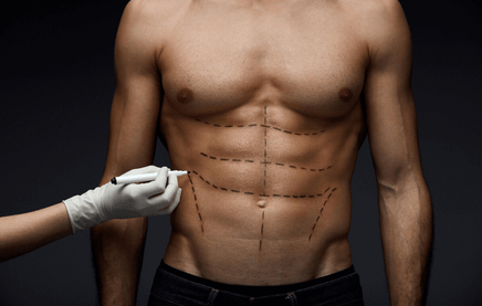 surgery is one of the ways you can get 12 pack abs